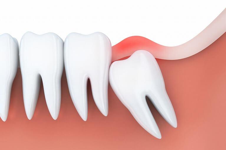 歯茎の腫れを解消できる